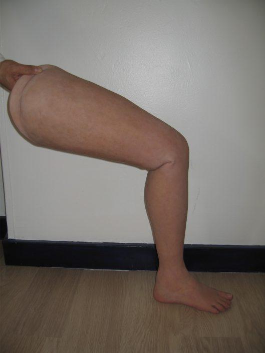 LEGS PROSTHESES FEET PROSTHESES